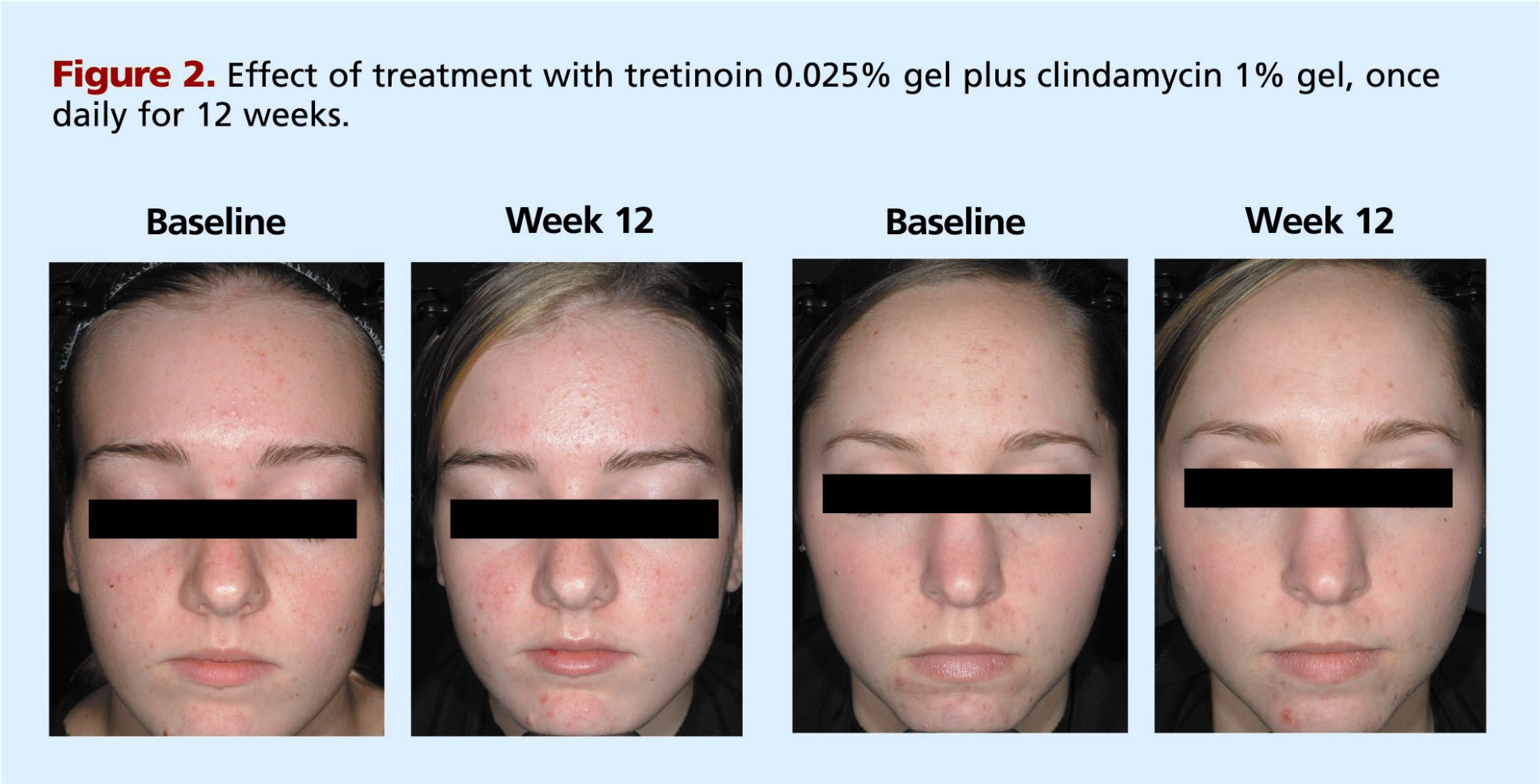Tazarotene 0 1 Percent Cream Plus Clindamycin 1 Percent Gel Versus Tretinoin 0 025 Percent Gel Plus Clindamycin 1 Percent Gel In The Treatment Of Facial Acne Vulgaris