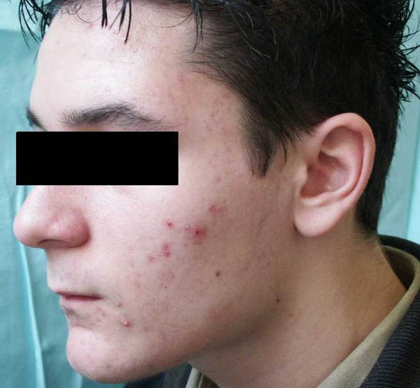 Azithromycin A New Therapeutical Strategy For Acne In Adolescents