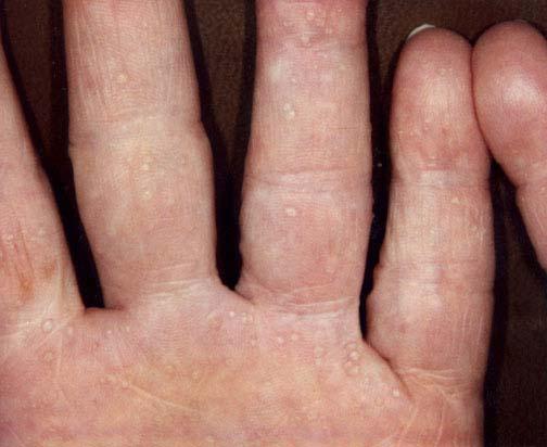 keratoderma palmoplantaris behandling
