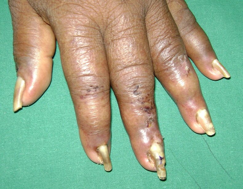 Yellow Nails Following Hemodialysis In Chronic Renal Failure Is