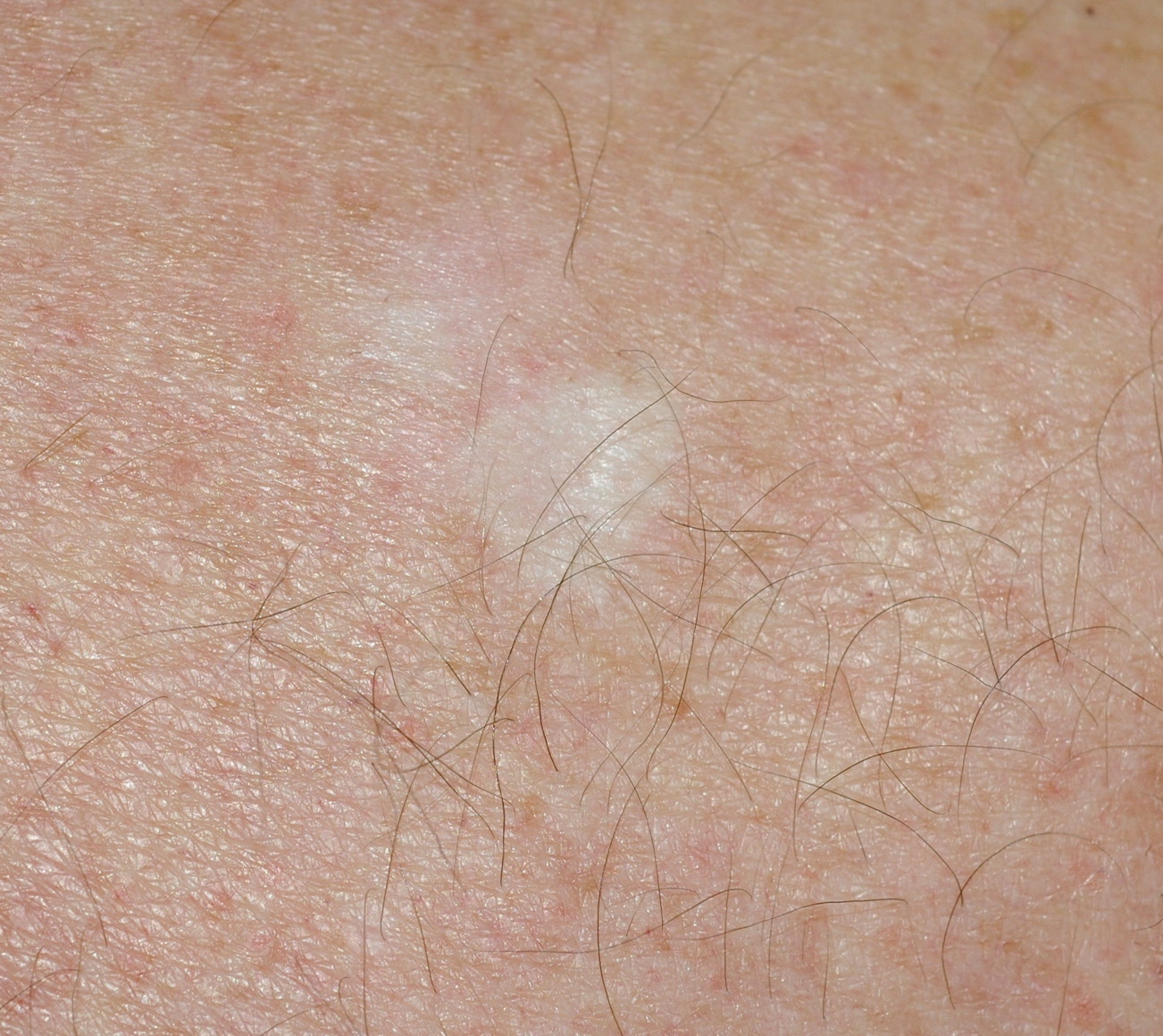 Local Reactions To Imiquimod In The Treatment Of Basal Cell Carcinoma