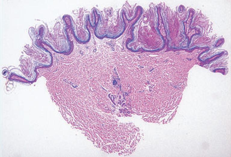 papillomatosis és acanthosis